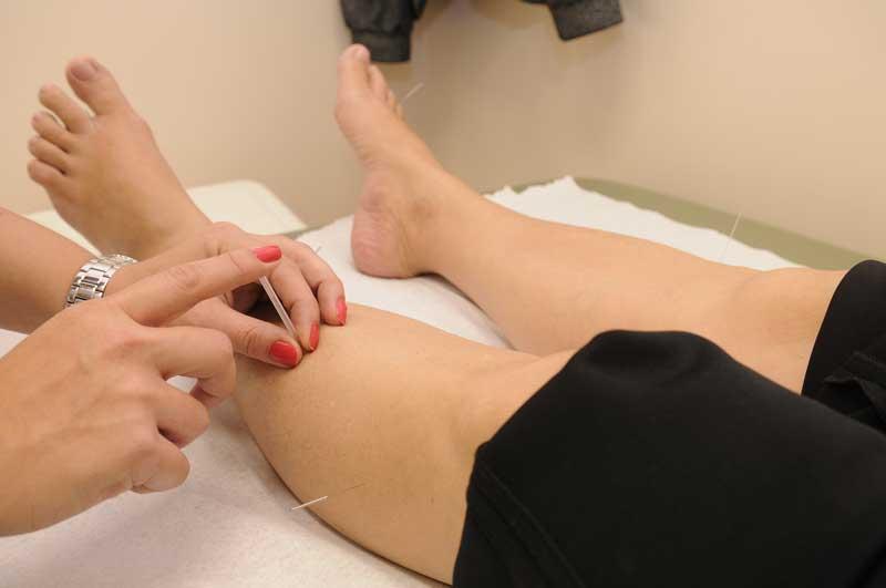 La acupuntura como terapia alternativa