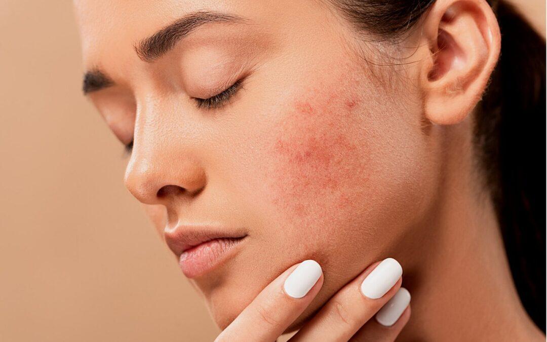 Cómo tratar el acné rápidamente